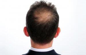 hair loss treatment Kelowna